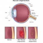 Nutrition is important in protection against Macular Degeneration